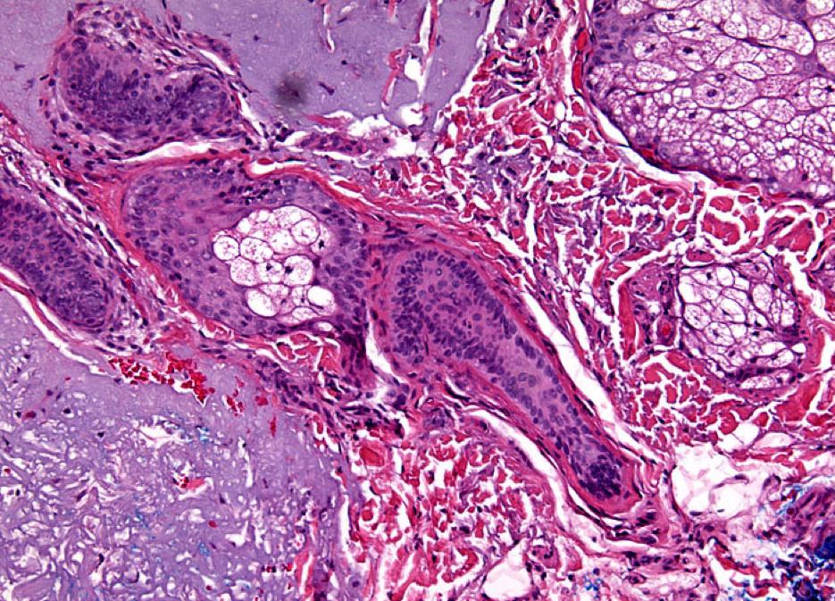 non-melanoma skin cancers